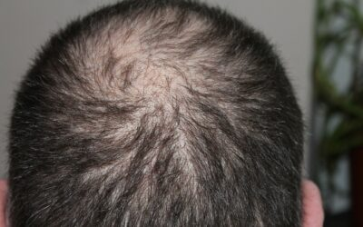 O vypadávání vlasů